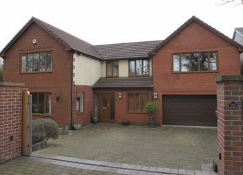Thumbnail 4 bed detached house to rent in Norden Road, Rochdale