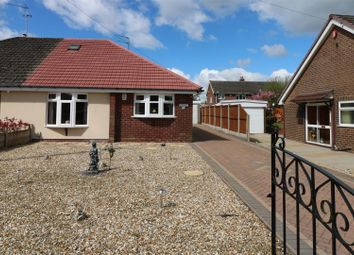 Thumbnail 3 bedroom property for sale in Park Drive, Werrington, Stoke-On-Trent