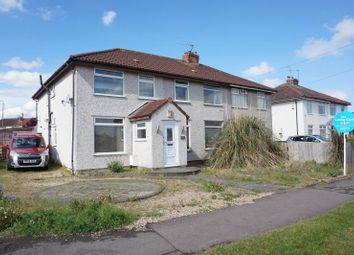Thumbnail Room to rent in Filton Avenue, Filton, Bristol