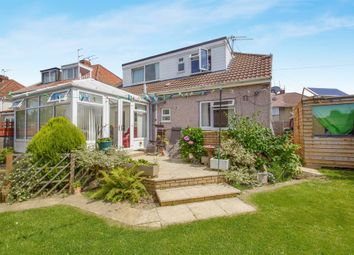 Thumbnail 4 bedroom detached house for sale in Springfield Avenue, Mangotsfield, Bristol