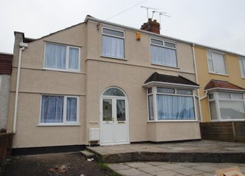 Thumbnail 6 bedroom property to rent in Muller Road, Horfield, Bristol