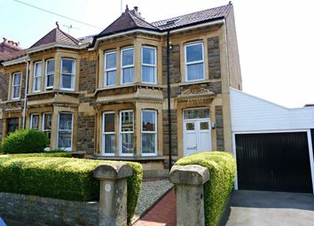 Thumbnail 5 bed end terrace house for sale in Calcott Road, Knowle, Bristol