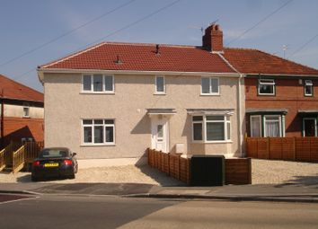 Thumbnail Room to rent in Braemar Avenue, Filton Park, Bristol