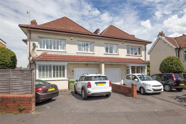 Thumbnail Semi-detached house for sale in Parrys Lane, Stoke Bishop, Bristol